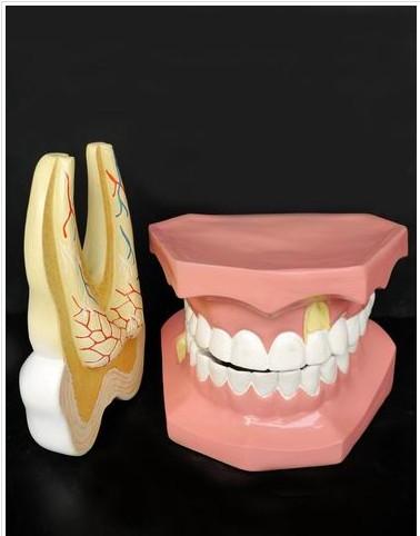 牙列磨齿解剖模型